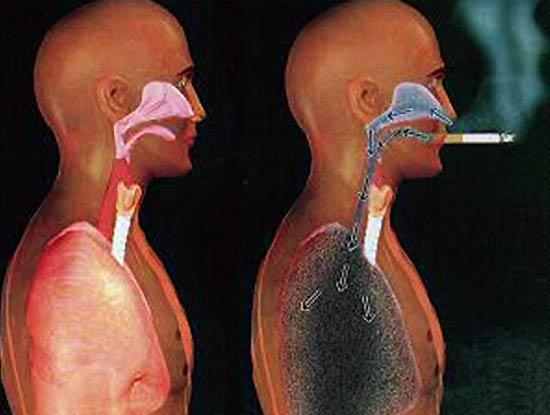 Teens und Rauchen und Gesundheit